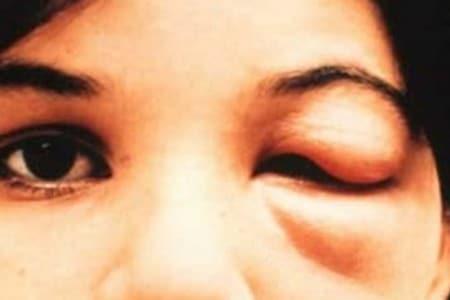 Лицо человека с болезнью Шагаса