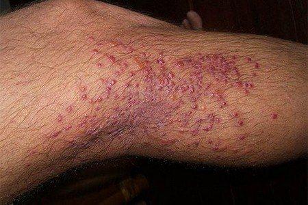 Дерматоз на ноге