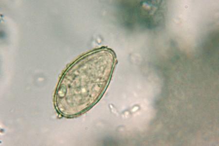 Яйца кошачьей двуустки под микроскопом