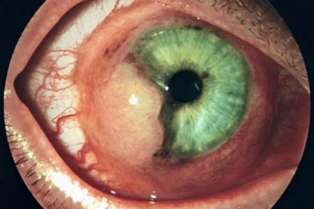 Зародыш глиста в глазе