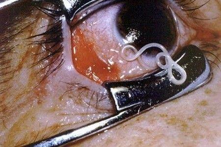 Филярия в глазу и скальпель