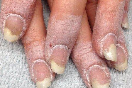 Слоистость ногтей