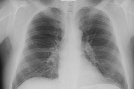 Паразити в легенях людини: симптоми і лікування » журнал здоров'я iHealth 2