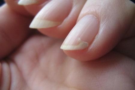 ломкая ногтевая пластина