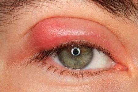 Глаз с ячменем