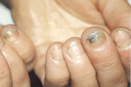 Ногти с грибком
