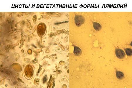 Цисты лямблий: что это такое (фото в кале)