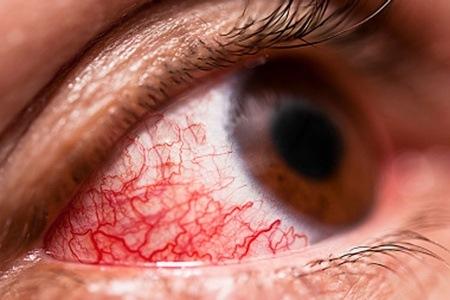 Онхоцеркоз: симптоми, лікування та профілактика » журнал здоров'я iHealth