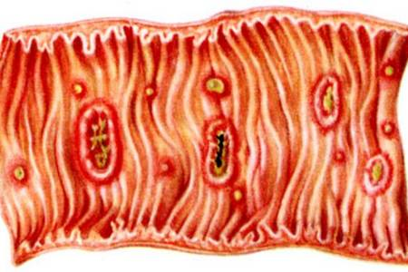 кишечник с заражением