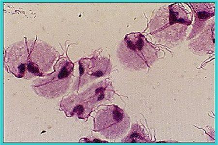 Клетки трихомонады