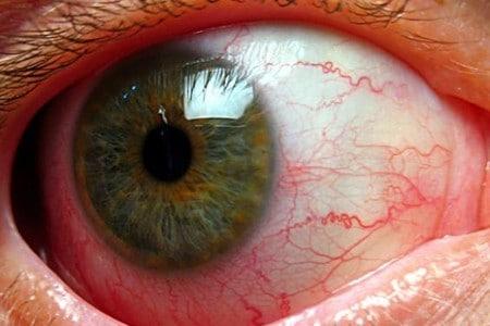 Токсоплазмоз глаз: симптомы и лечение поражения органов зрения