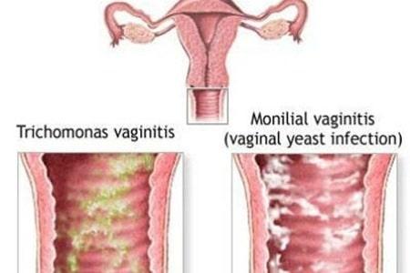 Рисунок женских половых органов