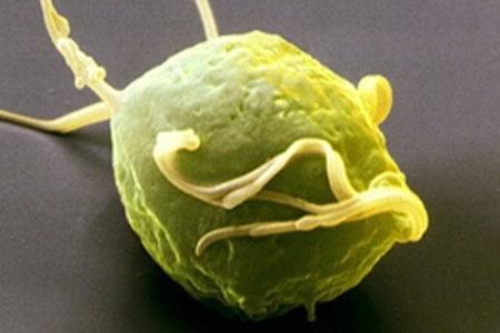 Клетка трихомониаза