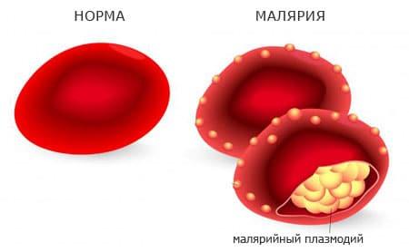 плазмоиды малярии